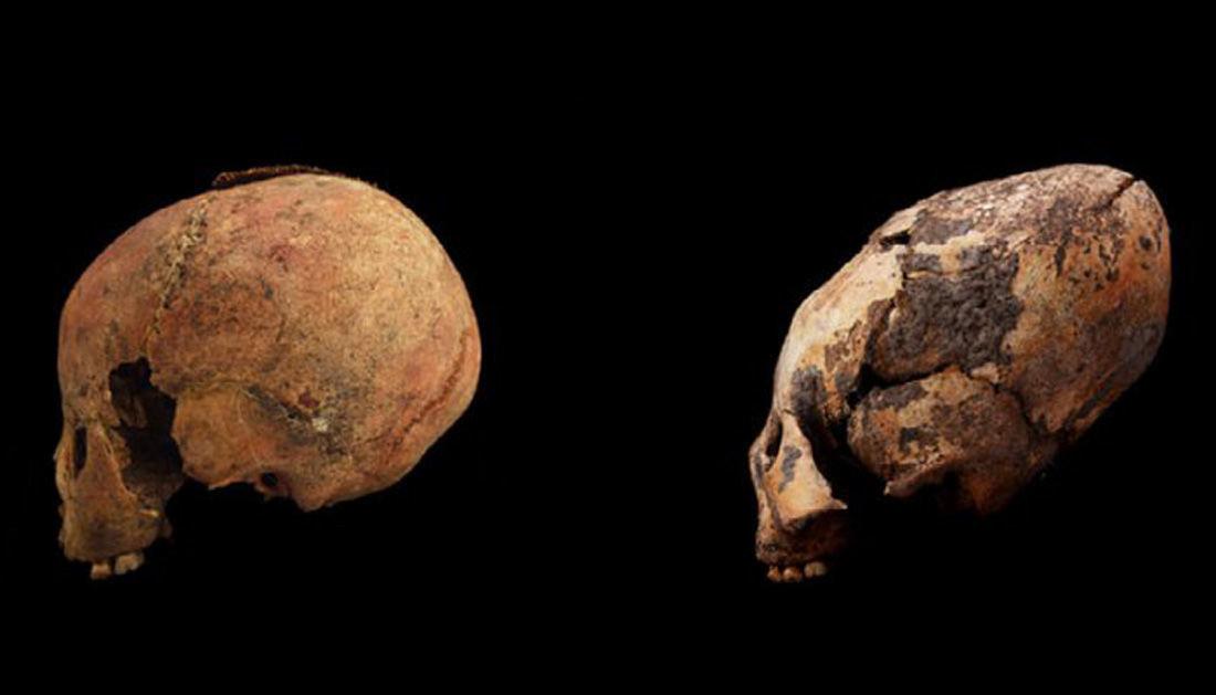 Crânios de duas crianças de 8 anos: não modificado (à esquerda) e modificado (à direita)