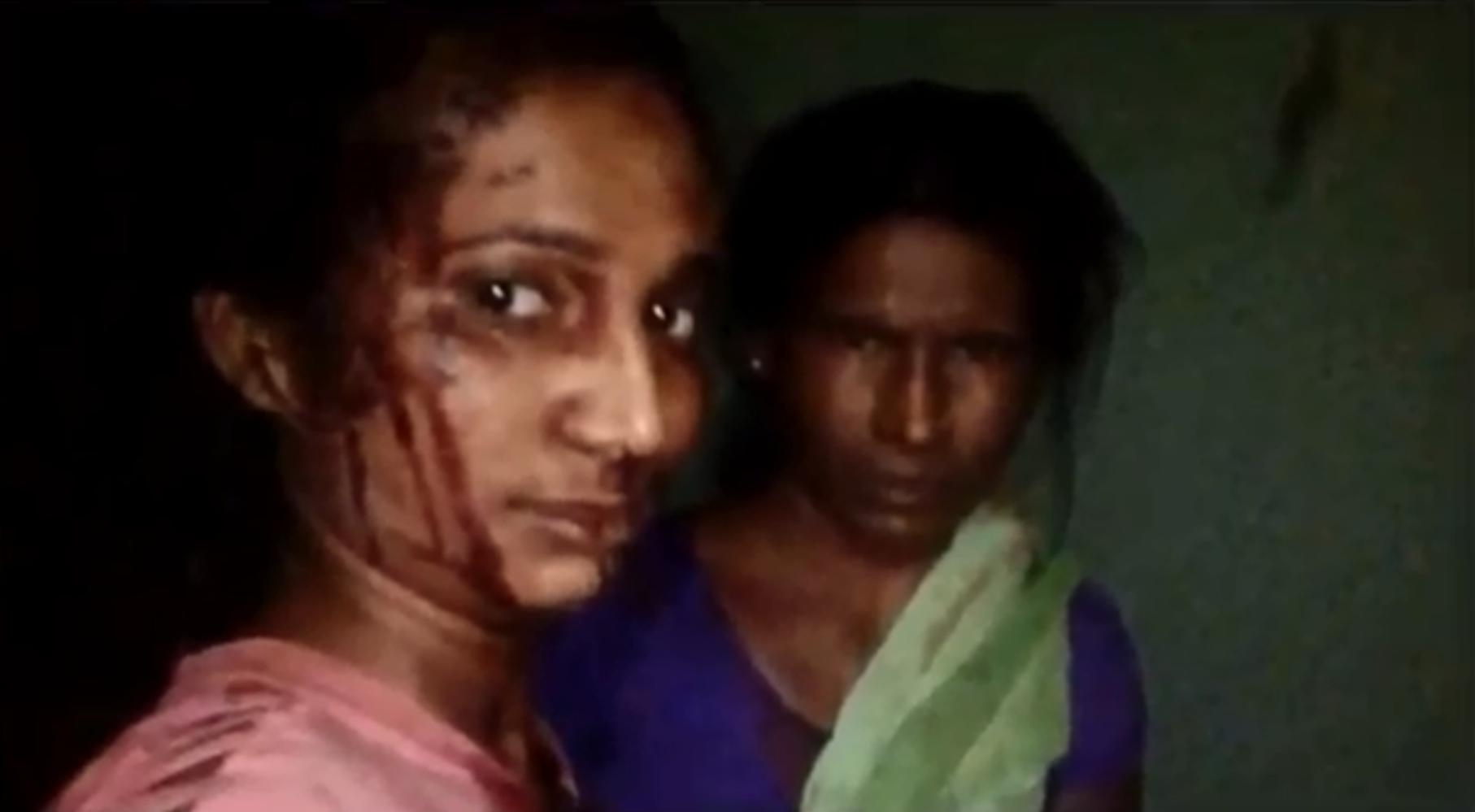 Rupali Meshram e sua mãe posam para uma selfie depois da luta de Meshram com um tigre