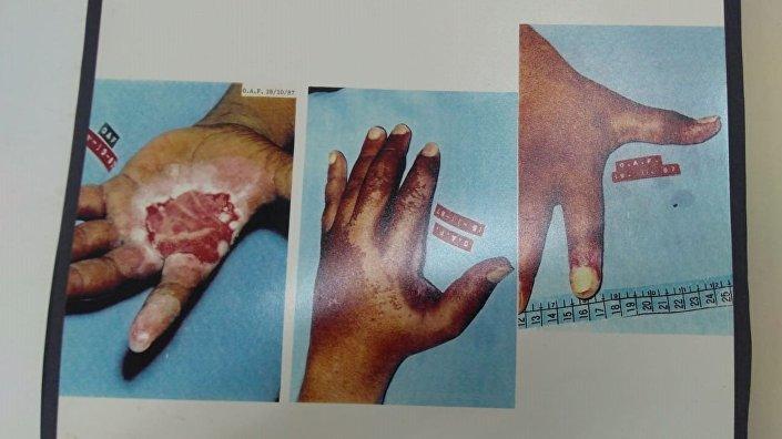 Queimadura na mão de um dos contaminados