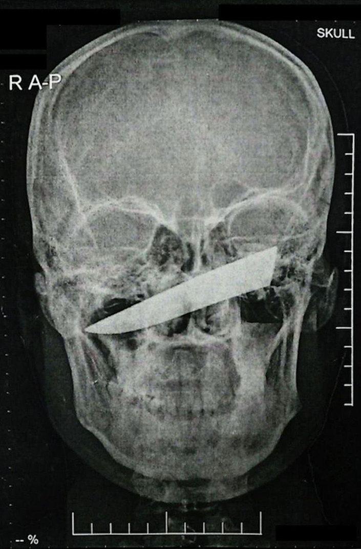 Sul-africano com faca crava na cabeça