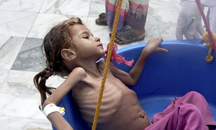 Menina iemenita sofre de desnutrição, consequência da guerra e do bloqueio da Arábia Saudita, Iêmen, 25 de agosto de 2018