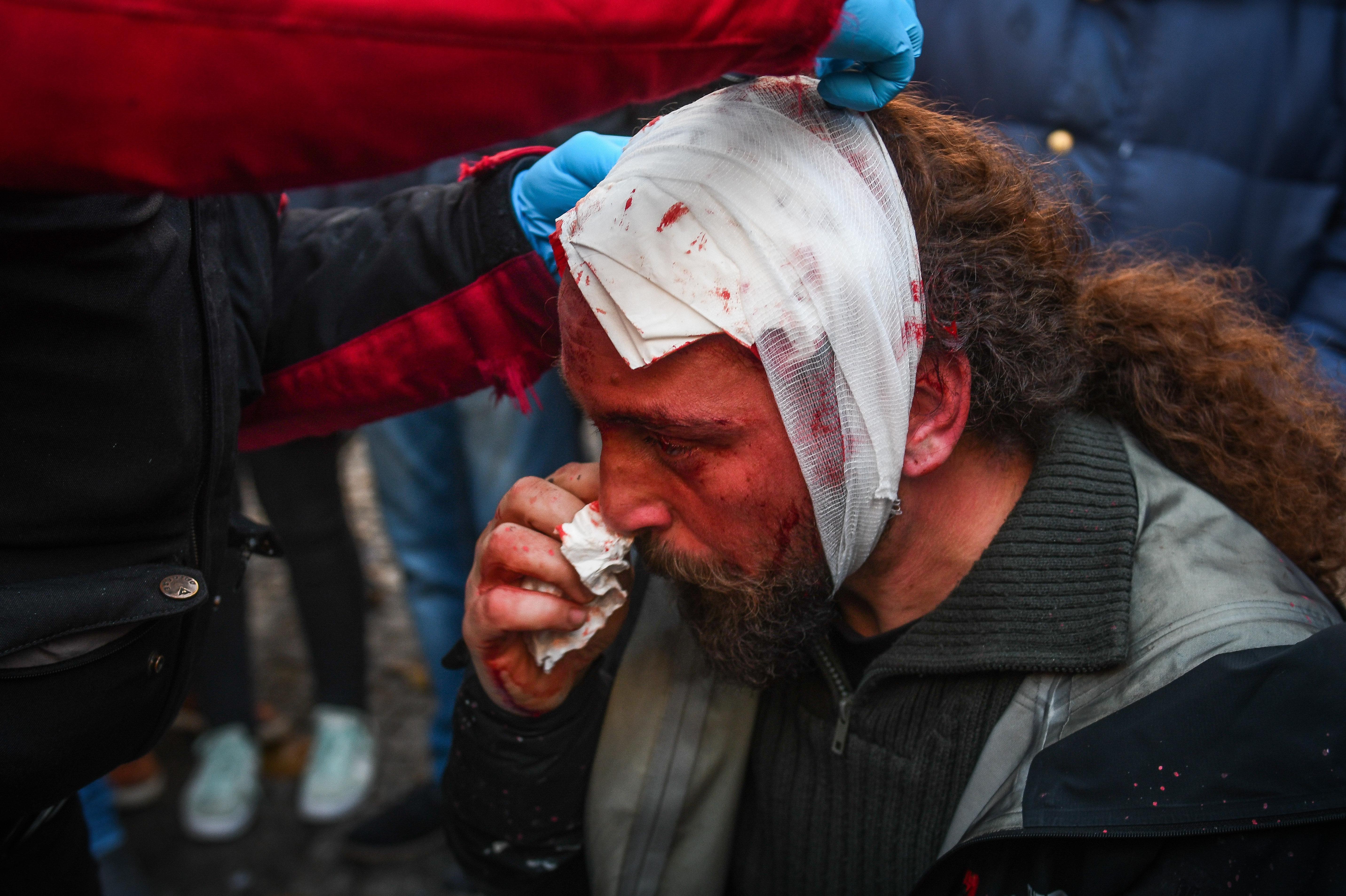 Kostis Dadamis, fotógrafo colaborador da Sputnik, após ser ferido em protesto realizado em Atenas.