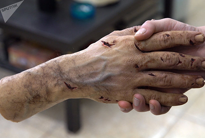 Mão falsa criada pelo artista plástico Prokopis Vlaseros