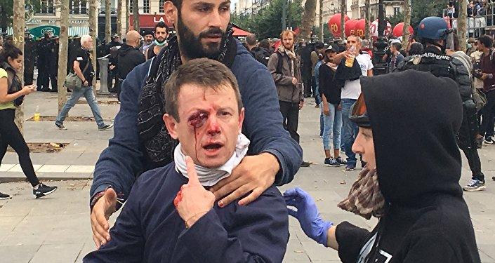 Vítimas de rixas entre manifestantes e policiais em Paris, 15 de setembro de 2016