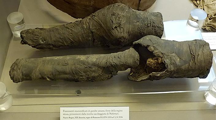 Pernas mumificadas da rainha Nefertari