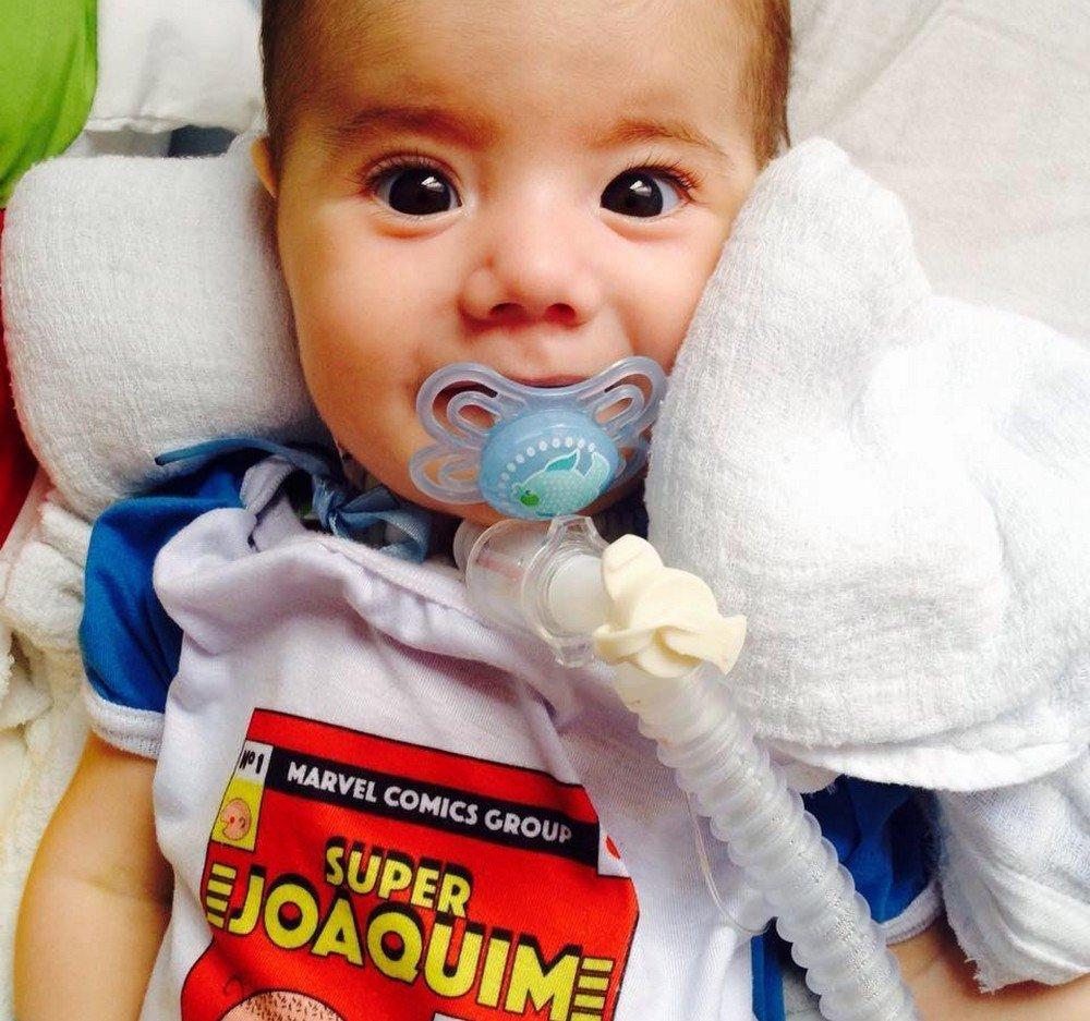 O menino Joaquim, de 8 meses, sofre de Amiatrofia Muscular Espinhal